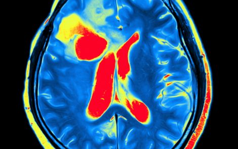 AIP Patients Show Enlarged Brain Cavities, Reduced Brain Blood Flow, Study Suggests